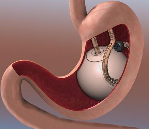 Tratamentos contra a obesidade - GASTROMÉDICA - Instituto Castelan
